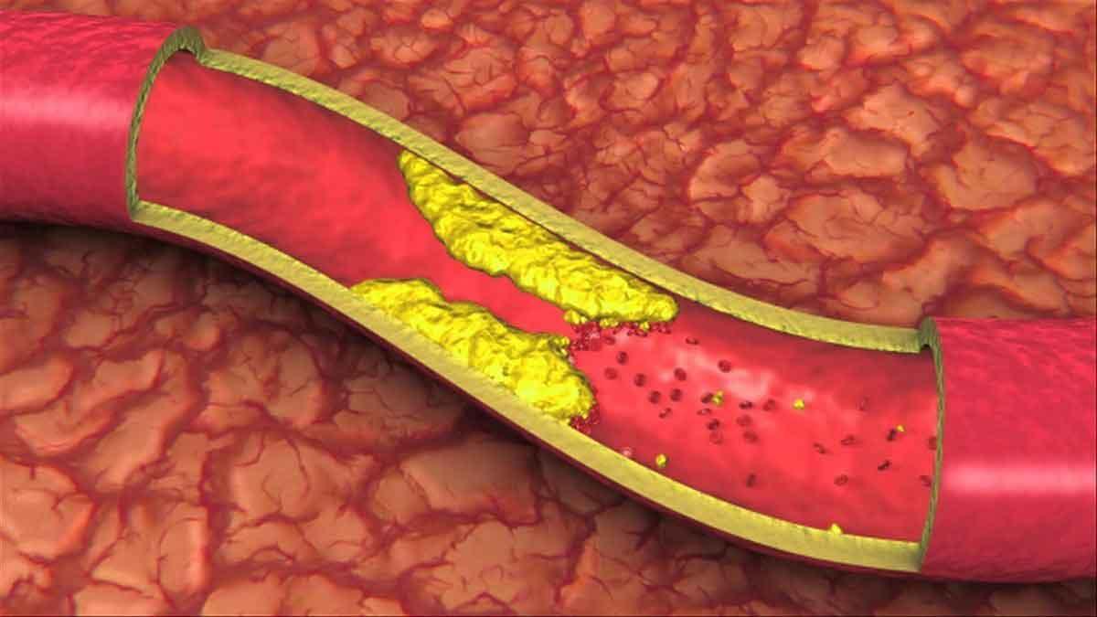Berberin tác dụng hạ lipid máu
