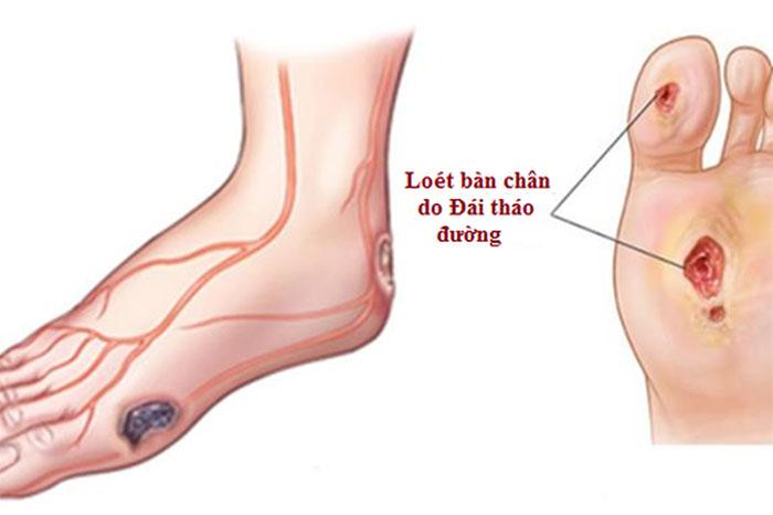 Biến chứng tiểu đường gây loét bàn chân