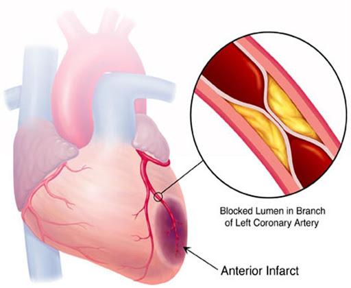 Biến chứng tiểu đường trên hệ tim mạch