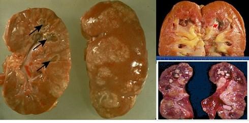 Hình ảnh cắt ngang quả thận của người bị tiểu đường biến chứng