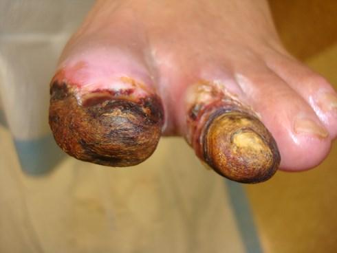 Bàn chân nhiễm trùng do biến chứng của bệnh tiểu đường