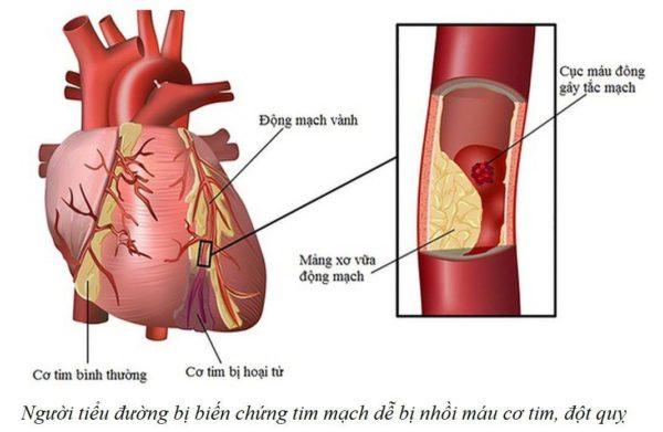 Biến chứng tiểu đường trên tim mạch