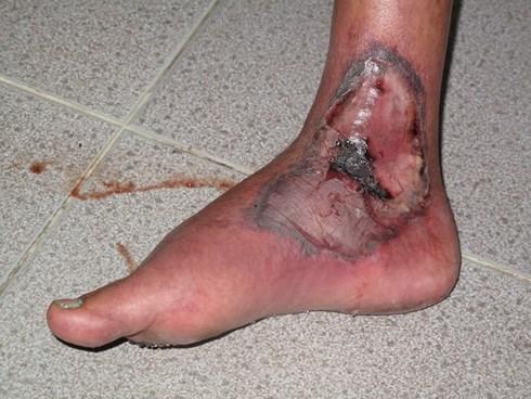 Tổn thương nặng trên chân do biến chứng của bệnh tiểu đường