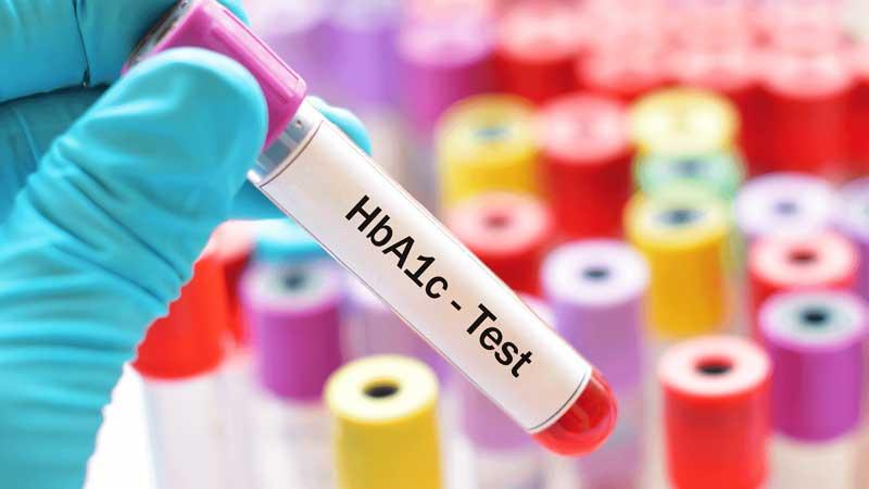 Test tiểu đường tuýp 2