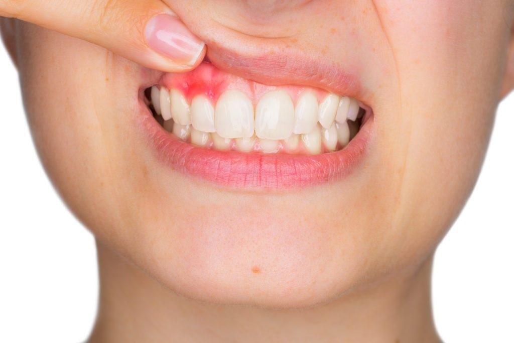 Nhiễm trùng răng miệng