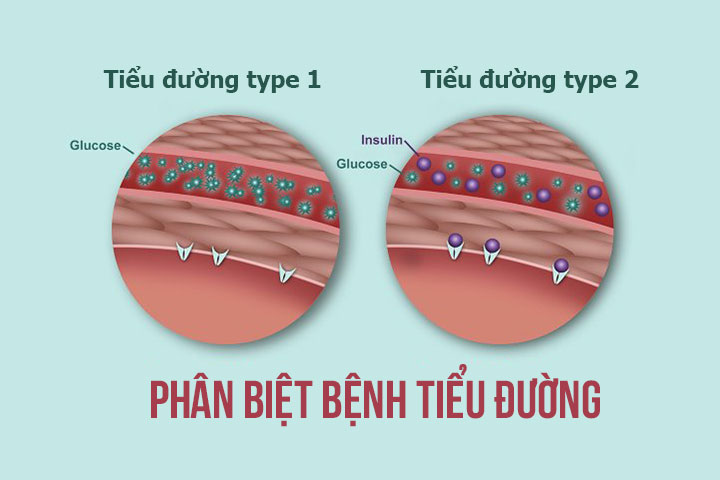 Phân biệt bệnh tiểu đường tuýp 1 và tuýp 2