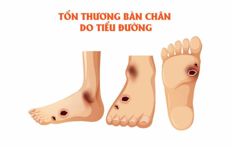 Hé lộ cách chăm sóc bàn chân ở bệnh nhân tiểu đường