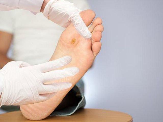Hé lộ cách chăm sóc bàn chân ở bệnh nhân tiểu đường 2