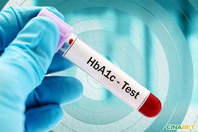Xét nghiệm máu để biết chỉ số HbA1c