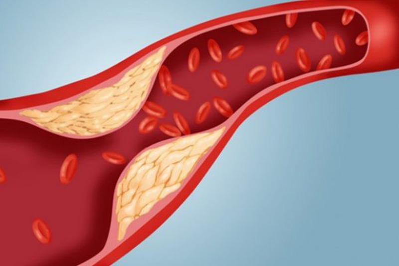Mảng bám do LDL - Cholesterol lắng đọng vào thành động mạch gây nên xơ vữa động mạch