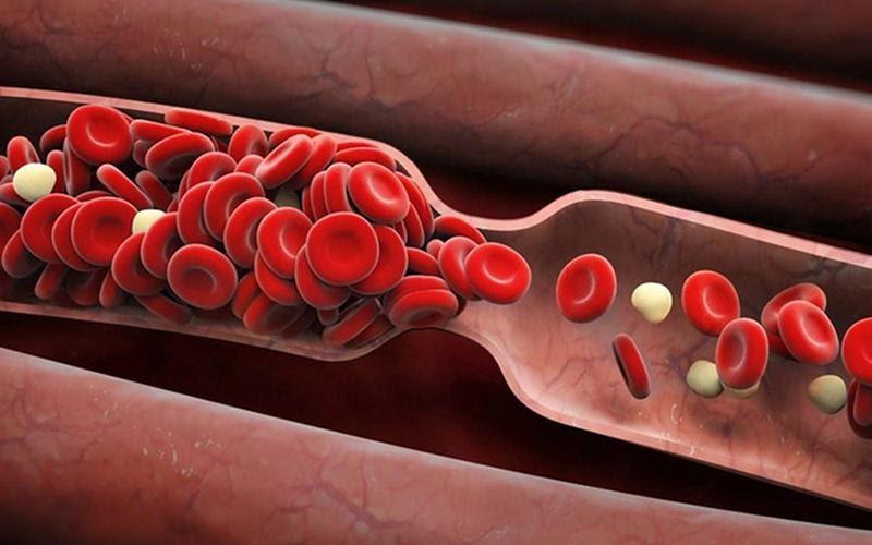 Hình ảnh rối loạn chuyển hóa mỡ máu