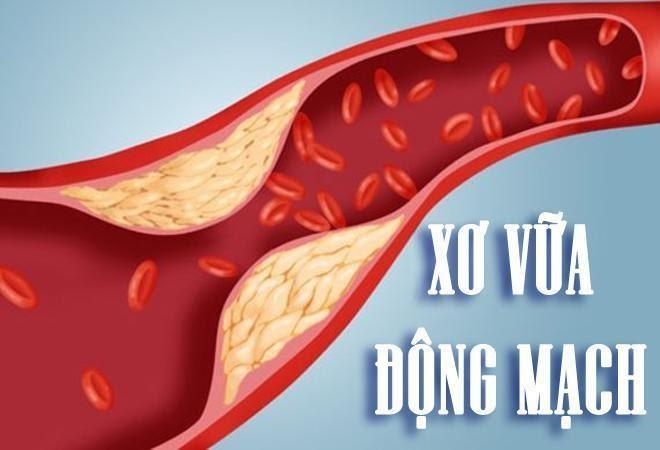 Xơ vữa động mạch là một trong những biến chứng của mỡ máu cao