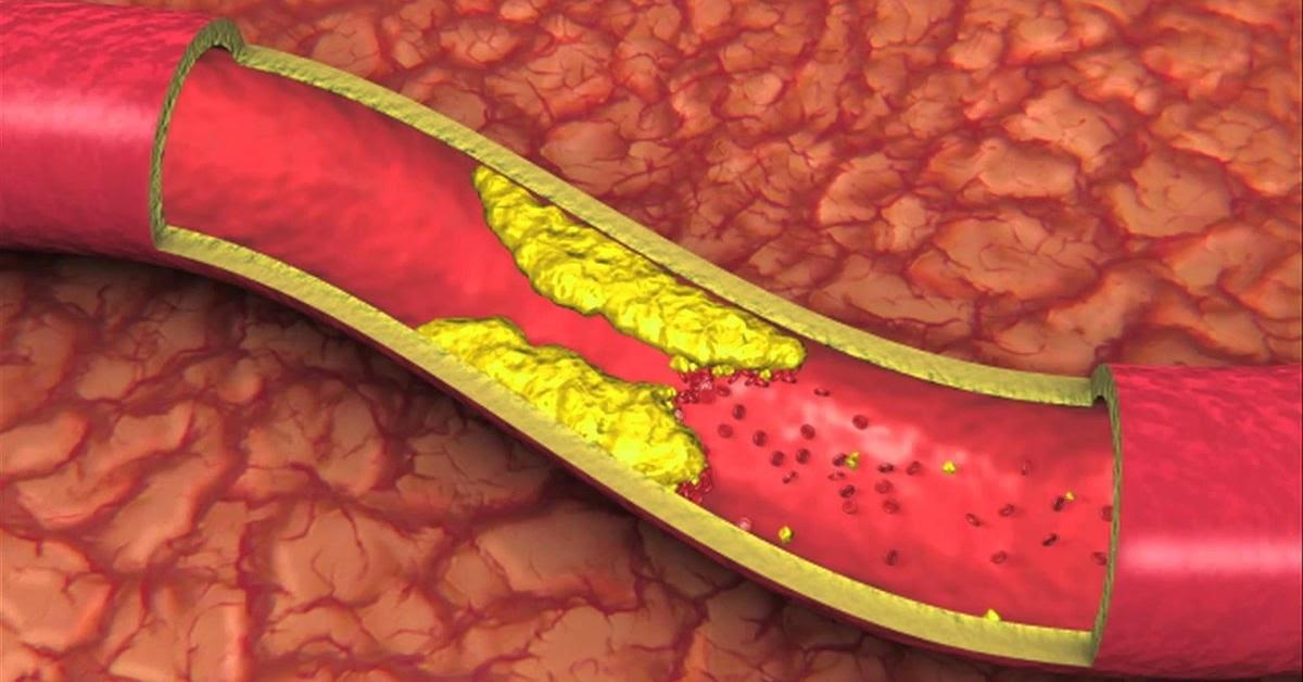 bệnh mỡ máu nên ăn gì, bệnh mỡ máu cần kiêng những gì