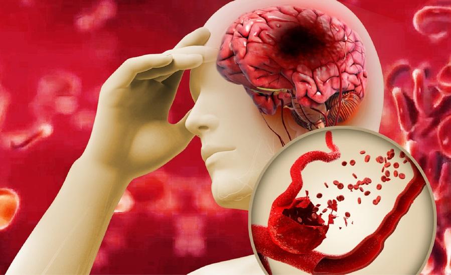 Đột quỵ não - biến chứng của mỡ máu cao