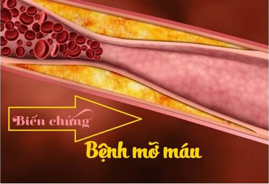 Biến chứng của mỡ máu cao gây ảnh hưởng nghiệm trọng đến sức khỏe