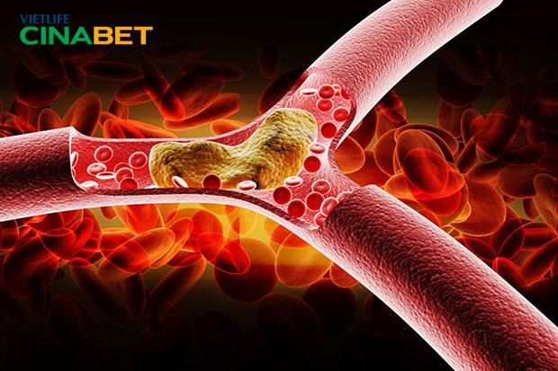 Cholesterol trong máu cao gây nhiều biến chứng nguy hiểm