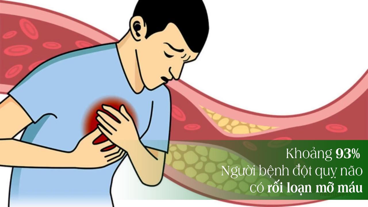 Người mỡ máu cao nếu không điều trị sớm sẽ có những biến chứng nguy hiểm