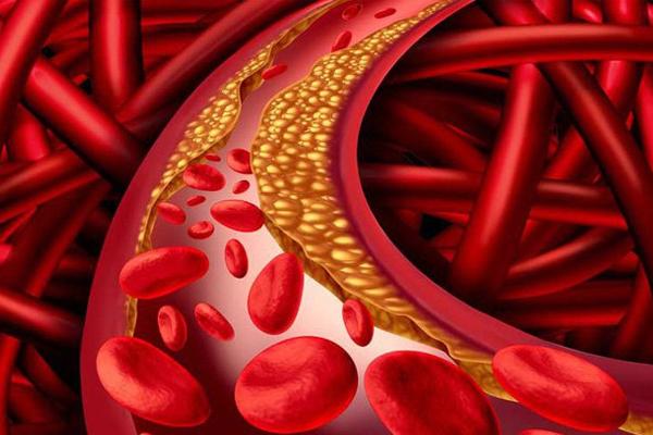 Người bệnh mỡ máu cao cần có chế độ ăn uống phù hợp