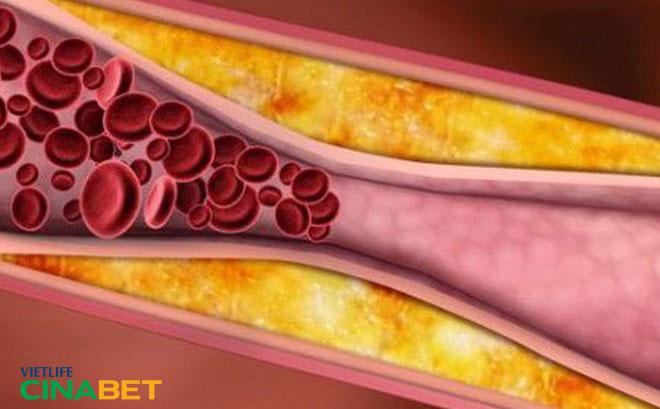 Biến chứng nguy hiểm khi mỡ máu tăng cao