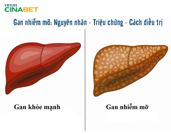 Hình ảnh so sánh gan khỏe mạnh và gan nhiễm mỡ