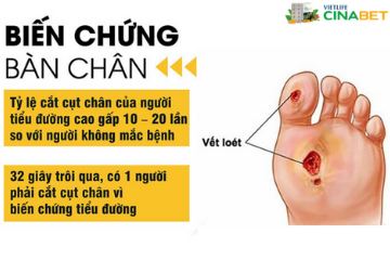 Cinabet - Phòng ngừa biến chứng loét bàn chân ở người tiểu đường